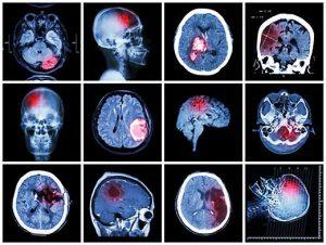 Deguonies deprivacija (smegenys)